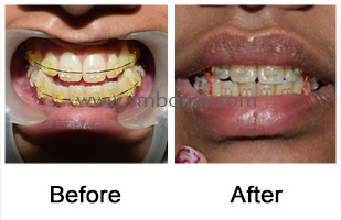 Long lower jaw corrected surgically enhancing the facial profile without any scars on the face